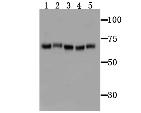 Western blot analysis of TGM6 on different tissue lysates using anti-TGM6 antibody at 1/100 dilution.<br />   Positive control:<br />   Lane 1 : Mouse brain <br />   Lane 2 : Mouse brain<br />   Lane 3 : Mouse spleen <br />   Lane 4 : Mouse spleen<br />   Lane 5 : Mouse testis