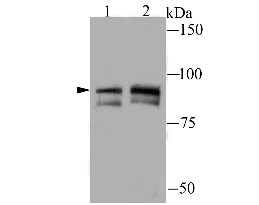 Western blot analysis of TNFAIP3 on Jurkat (1) and Daudi (2) cell lysate using anti-TNFAIP3 antibody at 1/100 dilution.