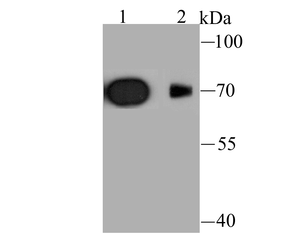 Western blot analysis of Kv1.4 on rat brain (1) and mouse brain (2) tissue lysate using anti-Kv1.4 antibody at 1/1,000 dilution.