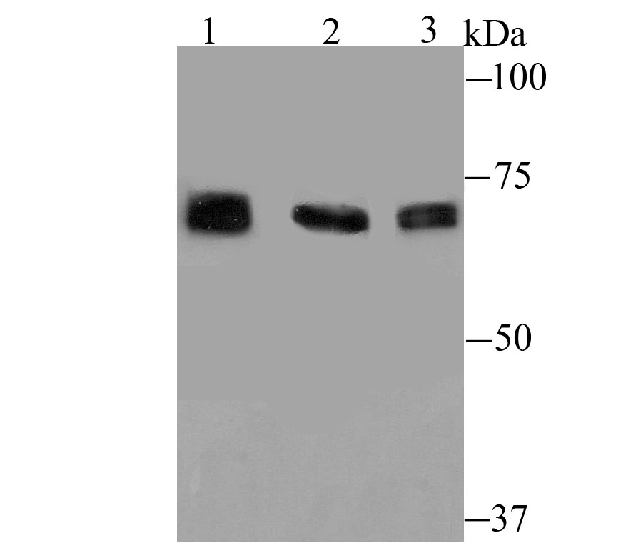 Western blot analysis of GRP78 on different lysates using anti-GRP78 antibody at 1/500 dilution.<br />   Positive control:<br />   Lane 1: Mouse liver tissue<br />   Lane 2: Rat liver tissue<br />   Lane 3: HepG2