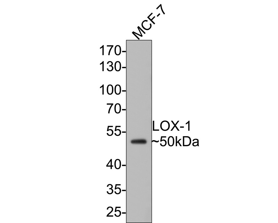 Western blot analysis of LOX1 on siHa cell lysate using anti-LOX1 antibody at 1/100 dilution.