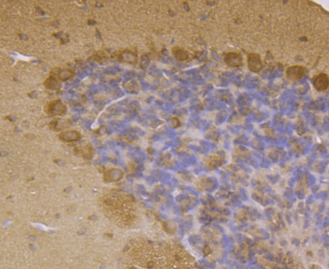 Immunohistochemical analysis of paraffin-embedded mouse cerebellum tissue using anti-LRRK2 antibody. The section was pre-treated using heat mediated antigen retrieval with Tris-EDTA buffer (pH 8.0-8.4) for 20 minutes.The tissues were blocked in 5% BSA for 30 minutes at room temperature, washed with ddH2O and PBS, and then probed with the primary antibody (ER1706-54, 1/200) for 30 minutes at room temperature. The detection was performed using an HRP conjugated compact polymer system. DAB was used as the chromogen. Tissues were counterstained with hematoxylin and mounted with DPX.