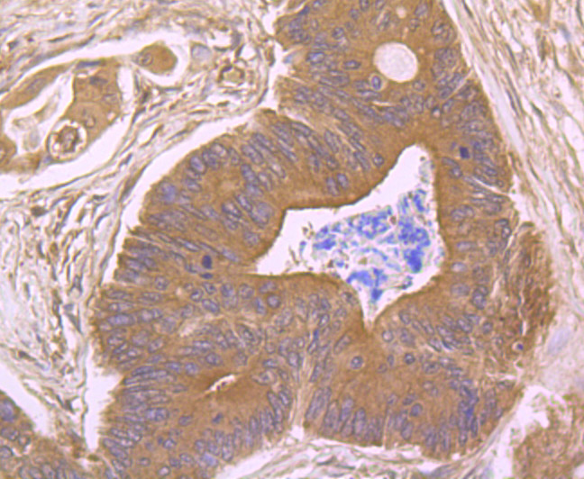 Immunohistochemical analysis of paraffin-embedded human colon cancer tissue using anti-CD21 antibody. Counter stained with hematoxylin.