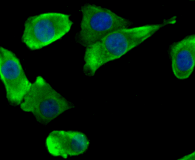 ICC staining NaV1.7 in A549 cells (green). The nuclear counter stain is DAPI (blue). Cells were fixed in paraformaldehyde, permeabilised with 0.25% Triton X100/PBS.