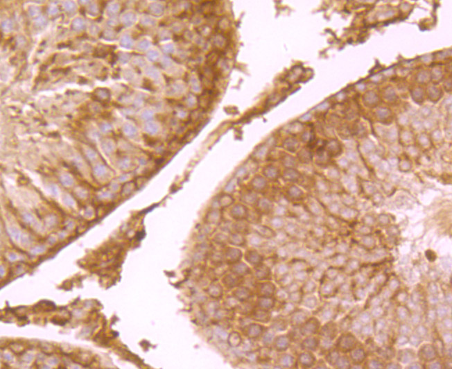 Immunohistochemical analysis of paraffin-embedded rat testis tissue using anti-NaV1.7 antibody. Counter stained with hematoxylin.
