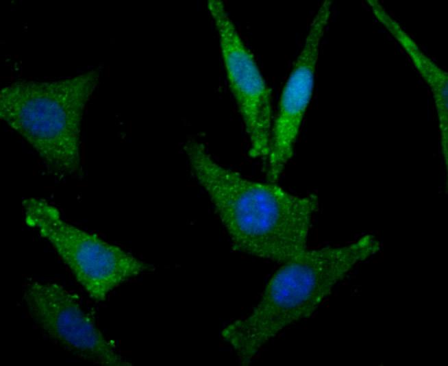 Immunohistochemical analysis of paraffin-embedded rat epididymis tissue using anti-MSI2 antibody. Counter stained with hematoxylin.