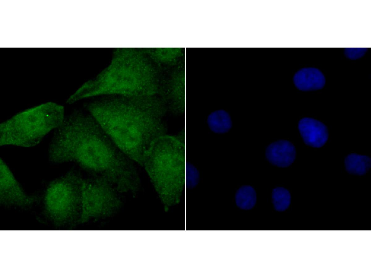ICC staining FOXM1 in A549 cells (green). The nuclear counter stain is DAPI (blue). Cells were fixed in paraformaldehyde, permeabilised with 0.25% Triton X100/PBS.