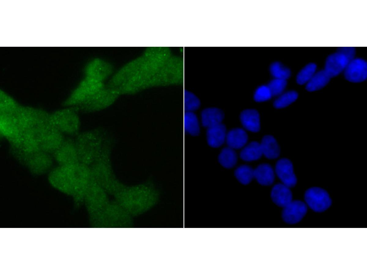 ICC staining 4E-BP1 in 293T cells (green). The nuclear counter stain is DAPI (blue). Cells were fixed in paraformaldehyde, permeabilised with 0.25% Triton X100/PBS.
