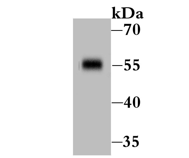 Western blot analysis of IL-7R-alpha on zebrafish tissue lysate using anti-IL-7R-alpha antibody at 1/500 dilution.
