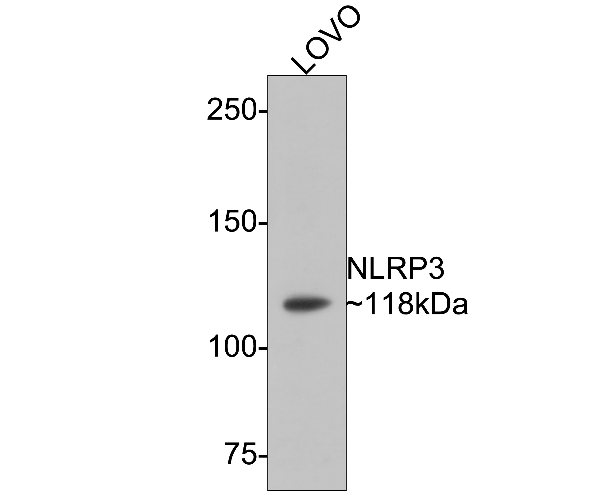 Western blot analysis of NLRP3 on different lysates using anti-NLRP3 antibody at 1/1,000 dilution.<br />  Positive control:<br />  Lane 1: Human lung <br />  Lane 2: Mouse thymus<br />  Lane 3: THP-1 <br />