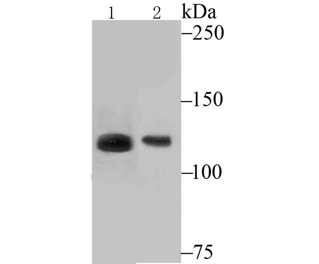 Western blot analysis of ATP citrate lyase on mouse pancreas tissue (1) and NIH-3T3 cell (2) lysate using anti-ATP citrate lyase antibody at 1/200 dilution.