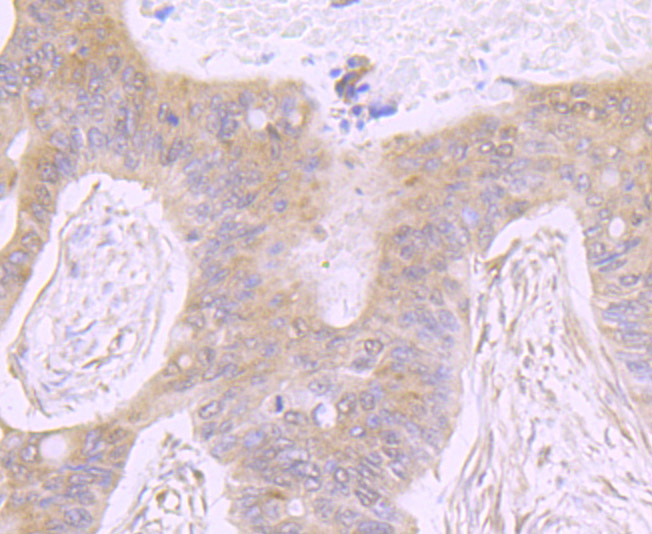 Immunohistochemical analysis of paraffin-embedded human pancreas tissue using anti-ATP citrate lyase antibody. Counter stained with hematoxylin.