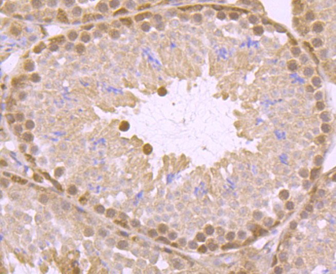 Flow cytometric analysis of A549 cells with ATP citrate lyase antibody at 1/100 dilution (red) compared with an unlabelled control (cells without incubation with primary antibody; black). Alexa Fluor 488-conjugated goat anti rabbit IgG was used as the secondary antibody.