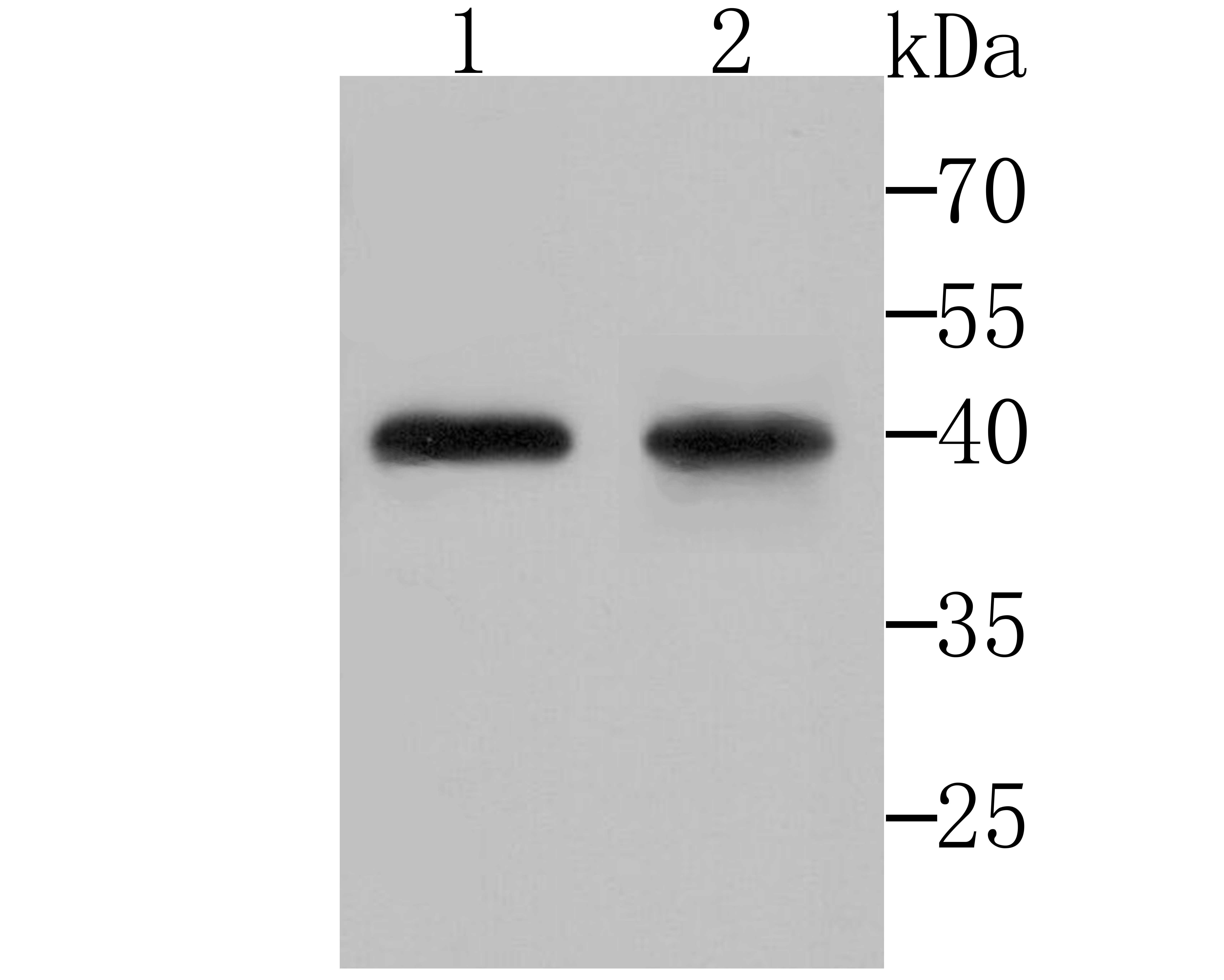 Western blot analysis of DDIT4 on Hela (1) and K562 (2) cell lysates using anti-DDIT4 antibody at 1/200 dilution.