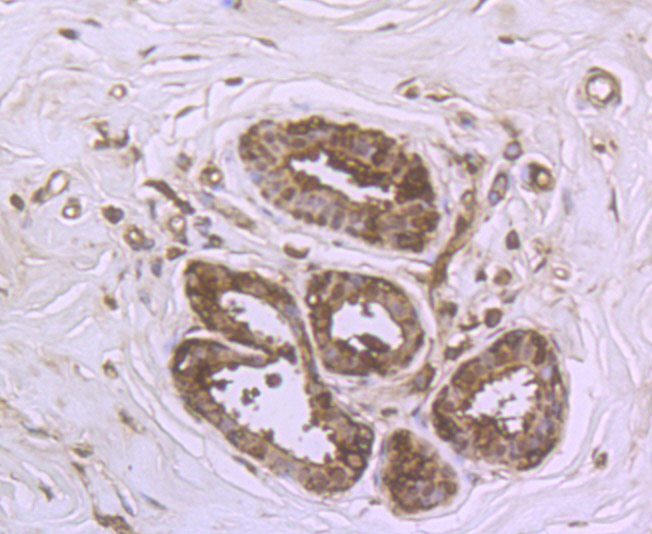 Immunohistochemical analysis of paraffin-embedded human breast tissue using anti-DDIT4 antibody. Counter stained with hematoxylin.