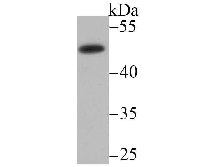 Western blot analysis of MMP-3 on LOVO cell lysate using anti-MMP-3 antibody at 1/200 dilution.