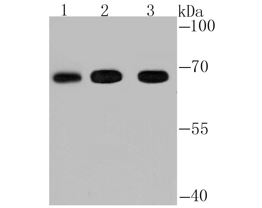 Western blot analysis of FBXW7 on different lysates using anti-FBXW7 antibody at 1/1,000 dilution.<br />   Positive control:<br />   Lane 1: Mouse spleen tissue <br />   Lane 2: Rat lung tissue<br />   Lane 3: HepG2