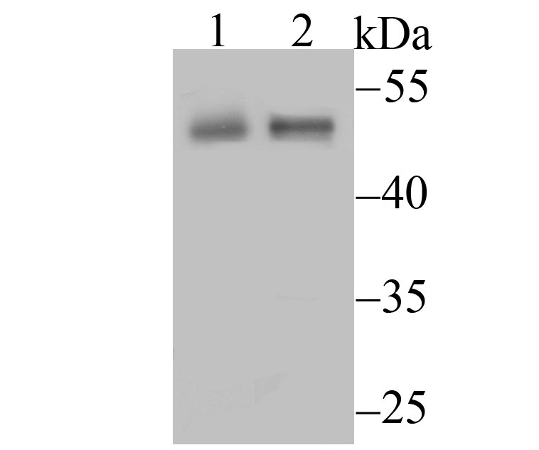 Western blot analysis of CD4 on different tissue lysates using anti-CD4 antibody at 1/500 dilution.<br />   Positive control:<br />   Lane 1: Mouse spleen <br />   Lane 2: Mouse thymus