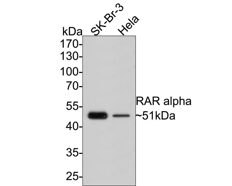 Western blot analysis of RAR alpha on different lysates using anti-RAR alpha antibody at 1/500 dilution.<br />   Positive control:<br />   Lane 1: Hela <br />   Lane 2: Human lung tissue