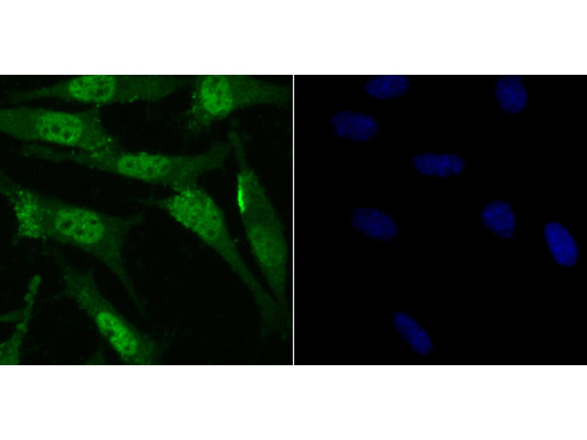 ICC staining RAR alpha in SH-SY5Y cells (green). The nuclear counter stain is DAPI (blue). Cells were fixed in paraformaldehyde, permeabilised with 0.25% Triton X100/PBS.