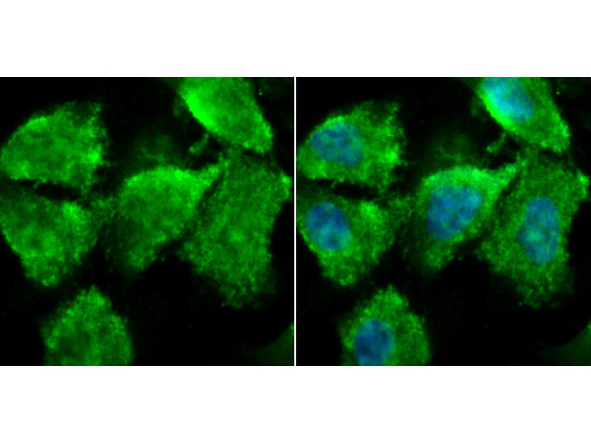 ICC staining ZBTB48 in PC-3M cells (green). The nuclear counter stain is DAPI (blue). Cells were fixed in paraformaldehyde, permeabilised with 0.25% Triton X100/PBS.