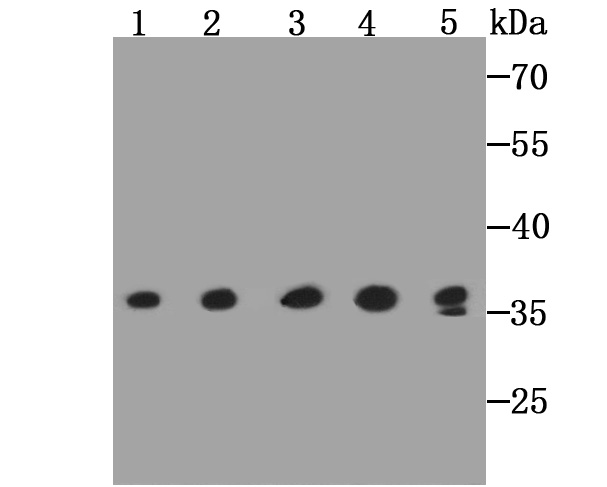 Western blot analysis of GAPDH on different lysates using anti-GAPDH antibody at 1/2,000 dilution.<br />   Positive control:<br />   Lane 1: PC-12 <br />   Lane 2: L929<br />   Lane 3: NIH/3T3 <br />   Lane 4: F9<br />   Lane 5: Mouse liver tissue