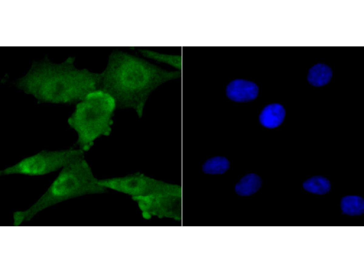 ICC staining of VEGF Receptor 2 in PMVEC cells (green). Formalin fixed cells were permeabilized with 0.1% Triton X-100 in TBS for 10 minutes at room temperature and blocked with 10% negative goat serum for 15 minutes at room temperature. Cells were probed with the primary antibody (ER1706-99, 1/50) for 1 hour at room temperature, washed with PBS. Alexa Fluor®488 conjugate-Goat anti-Rabbit IgG was used as the secondary antibody at 1/1,000 dilution. The nuclear counter stain is DAPI (blue).