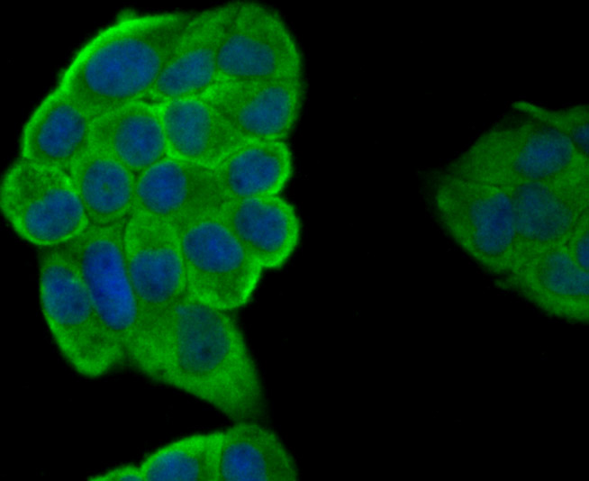 ICC staining IL19 in Hela cells (green). The nuclear counter stain is DAPI (blue). Cells were fixed in paraformaldehyde, permeabilised with 0.25% Triton X100/PBS.