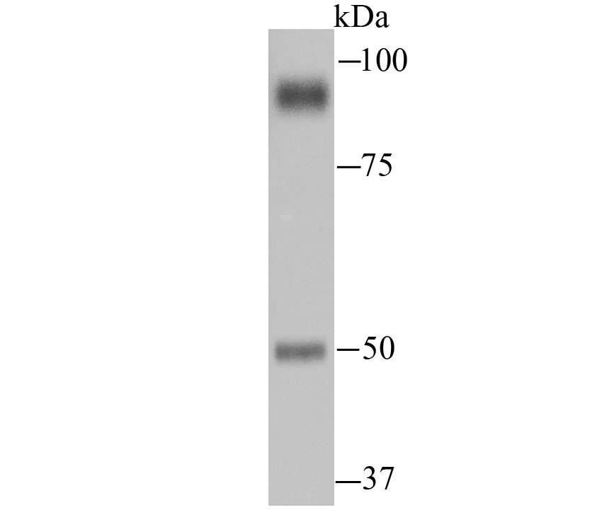 Western blot analysis of PSMA on human small intestine tissue lysate using anti-PSMA antibody at 1/1,000 dilution.