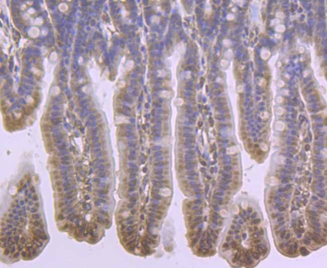 Immunohistochemical analysis of paraffin-embedded mouse colon tissue using anti-PBR antibody. Counter stained with hematoxylin.