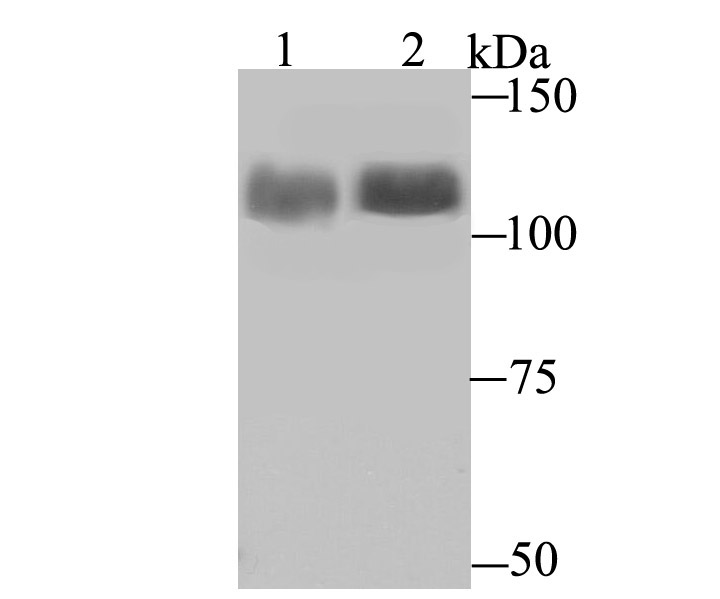 Western blot analysis of LSD1 on PC-12 and SiHa cell lysates using anti-LSD1 antibody at 1/1,000 dilution.<br />