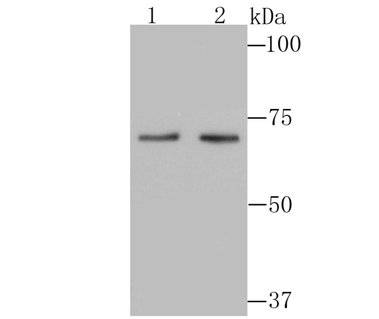 Western blot analysis of PKC beta 2 on different lysates using anti-PKC beta 2 antibody at 1/500 dilution.<br />   Positive control:<br />   Lane 1: Rat spleen tissue <br />   Lane 2: Jurkat