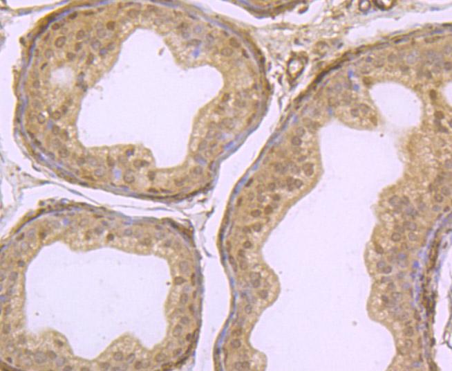 Immunohistochemical analysis of paraffin-embedded rat epididymis tissue using anti-KDM5B antibody. Counter stained with hematoxylin.