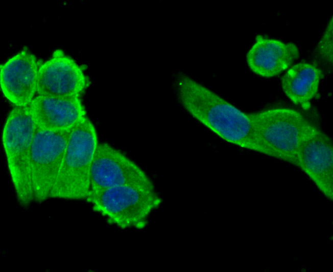 ICC staining CXCR4 in Hela cells (green). The nuclear counter stain is DAPI (blue). Cells were fixed in paraformaldehyde, permeabilised with 0.25% Triton X100/PBS.