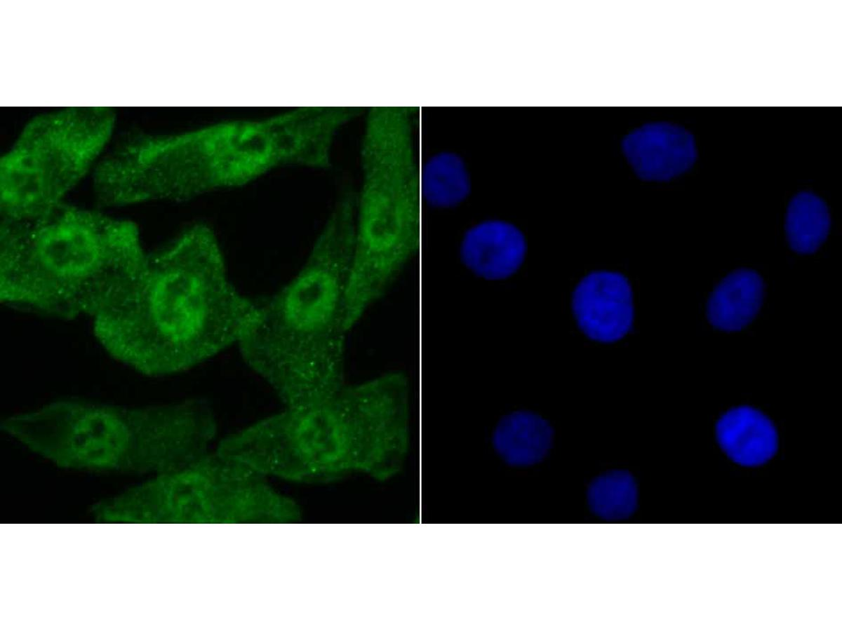 ICC staining Progesterone Receptor in A549 cells (green). The nuclear counter stain is DAPI (blue). Cells were fixed in paraformaldehyde, permeabilised with 0.25% Triton X100/PBS.