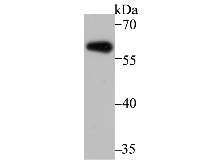 Western blot analysis of Aromatase on mouse cerebellum tissue lysate using anti-Aromatase antibody at 1/500 dilution.