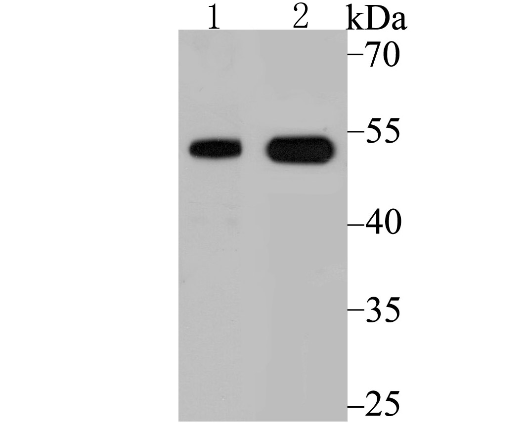 Western blot analysis of Vitamin D Receptor on PC-3M cell and human small intestine tissue lysate using anti-Vitamin D Receptor antibody at 1/500 dilution.