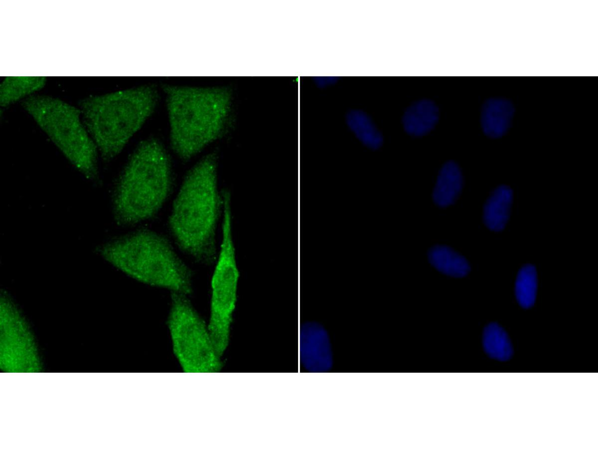 ICC staining HIF-1 alpha in SiHa cells (green). The nuclear counter stain is DAPI (blue). Cells were fixed in paraformaldehyde, permeabilised with 0.25% Triton X100/PBS.