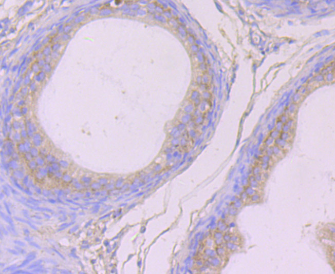 Immunohistochemical analysis of paraffin-embedded rat epididymis tissue using anti-Cytokeratin 8 antibody. Counter stained with hematoxylin.