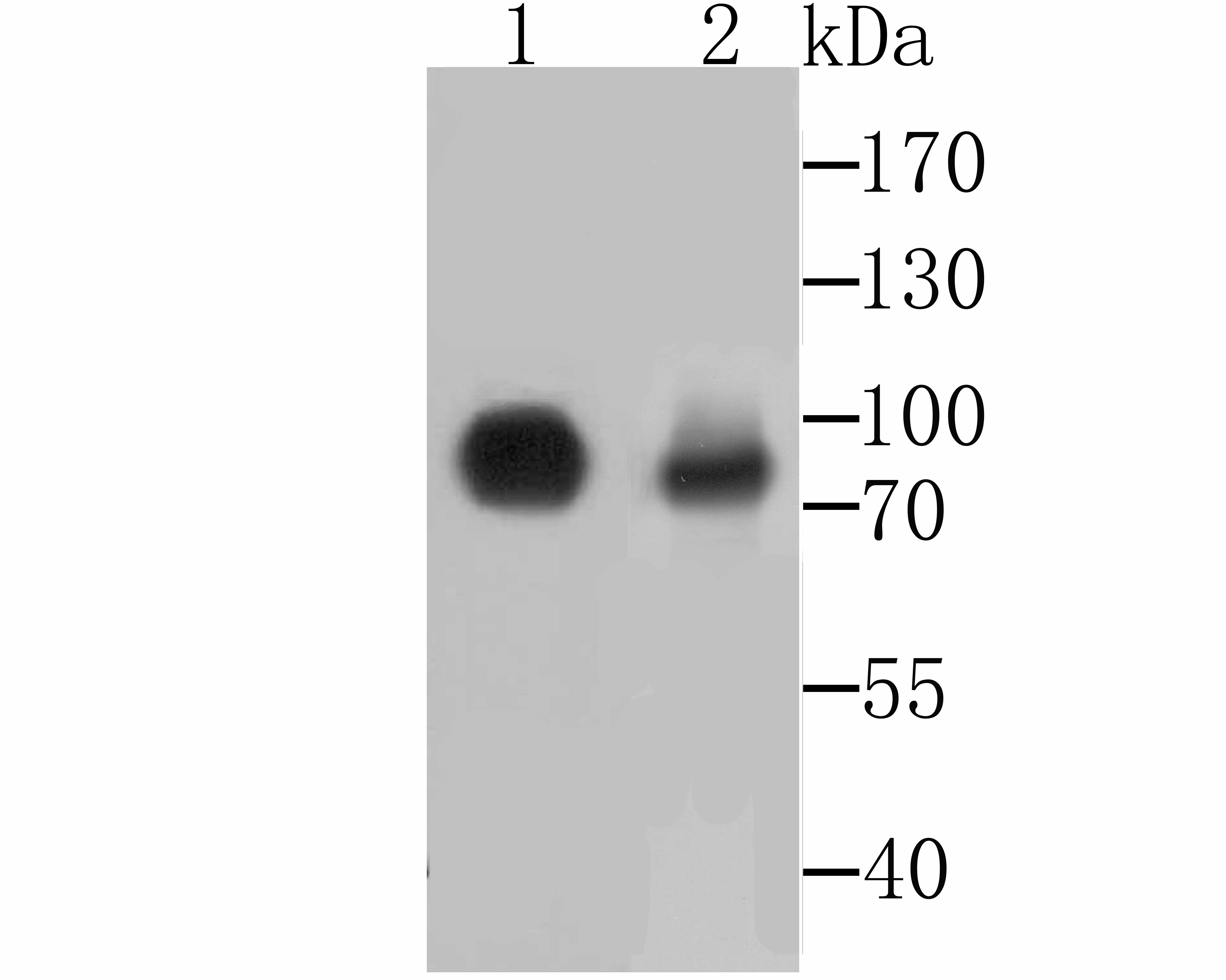 Western blot analysis of CD55 on Hela and PC-3M cell lysates using anti-CD55 antibody at 1/500 dilution.