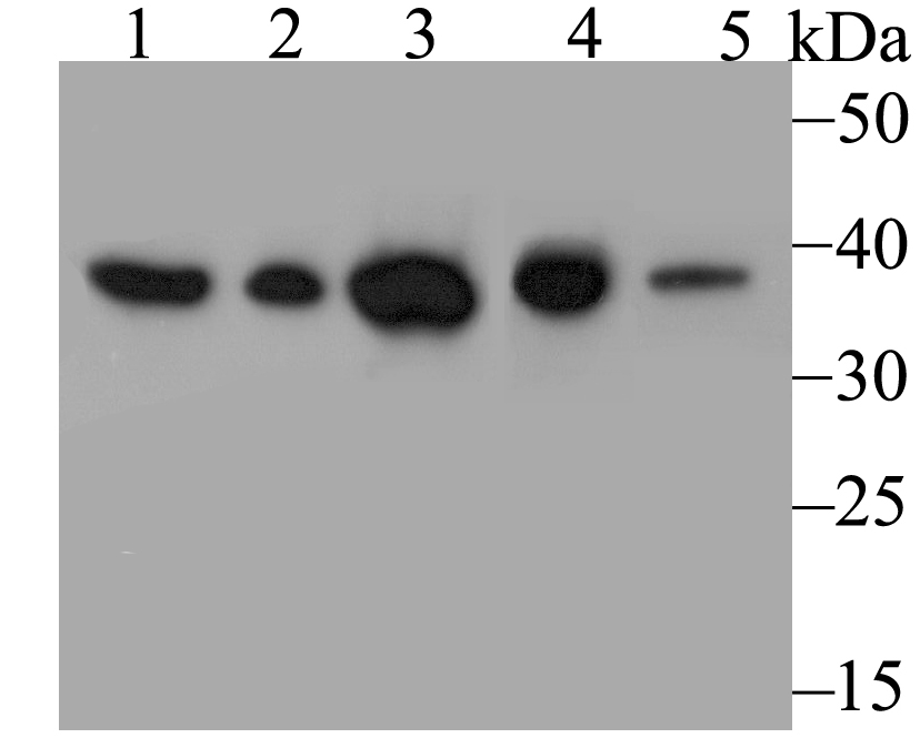 Western blot analysis of Annexin A3 on different lysates using anti-Annexin A3 antibody at 1/1,000 dilution.<br />  Positive control:<br />  Lane 1: Siha <br />  Lane 2: Hela<br />  Lane 3: Rat spleen tissue<br />  Lane 4: Rat liver tissue<br />  Lane 5: Mouse lung tissue<br />