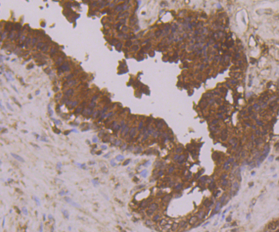 Immunohistochemical analysis of paraffin-embedded human prostate tissue using anti-Annexin A3 antibody. Counter stained with hematoxylin.