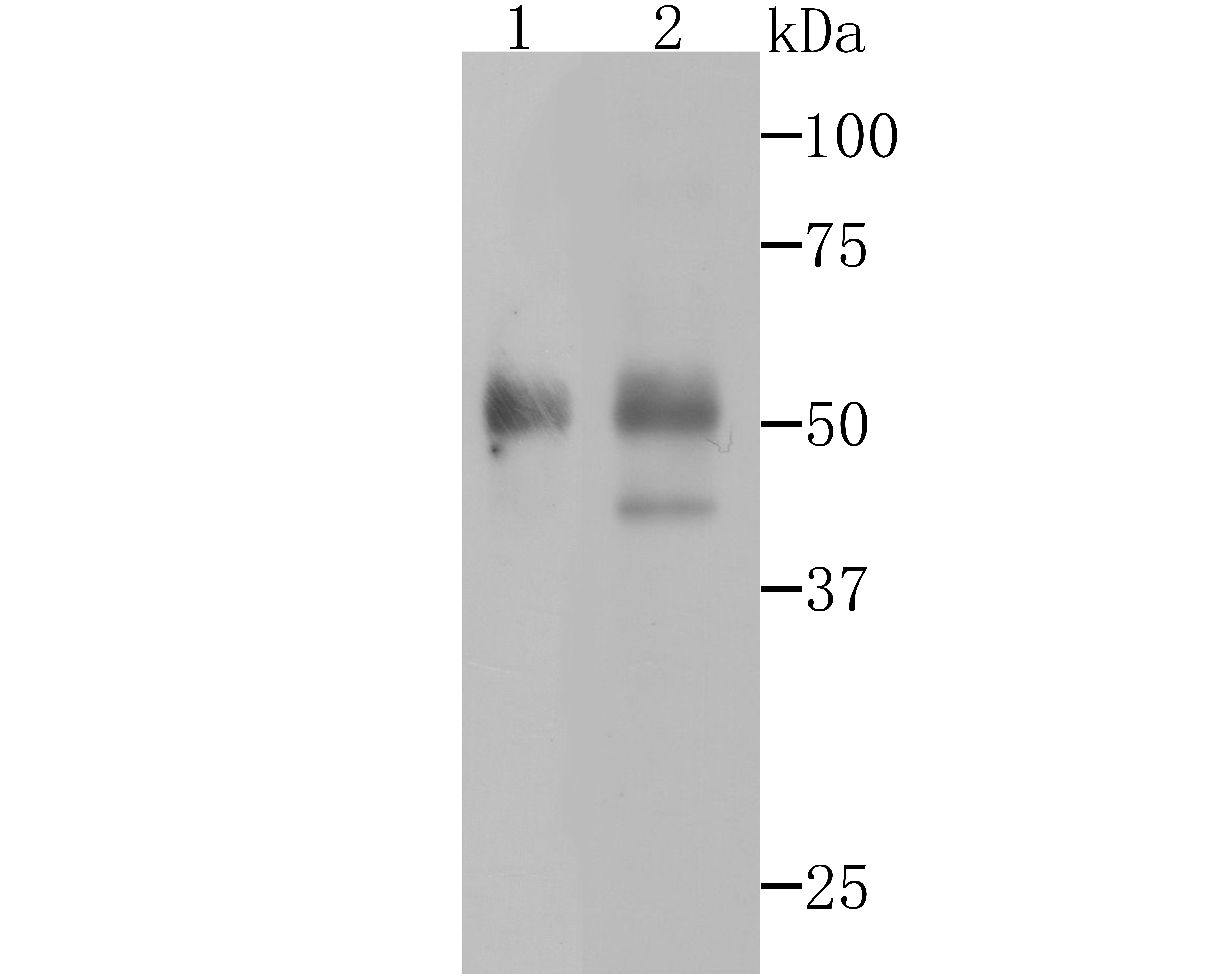 Western blot analysis of Pax8 on human thyroid gland tissue and SKOV-3 cell lysates using anti-Pax8 antibody at 1/500 dilution.