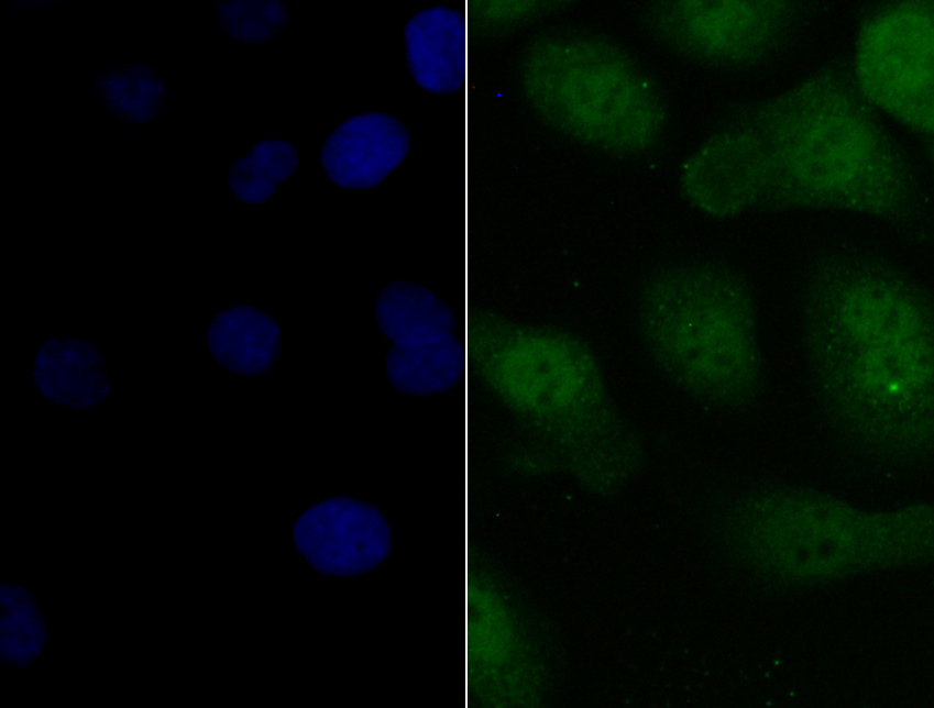 ICC staining Pax8 in SKOV-3 cells (green). The nuclear counter stain is DAPI (blue). Cells were fixed in paraformaldehyde, permeabilised with 0.25% Triton X100/PBS.