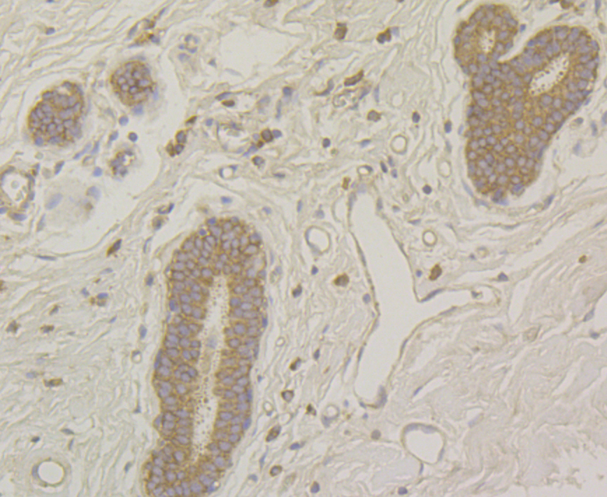 Immunohistochemical analysis of paraffin-embedded human breast tissue using anti-Raptor antibody. Counter stained with hematoxylin.