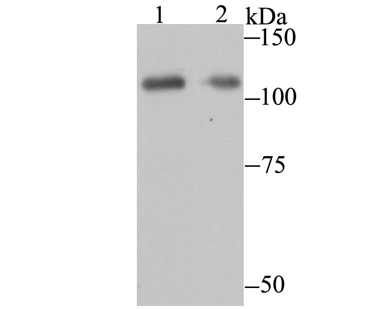 Western blot analysis of PARP1 on Daudi and 293 cell lysates using anti- PARP1 antibody at 1/500 dilution.