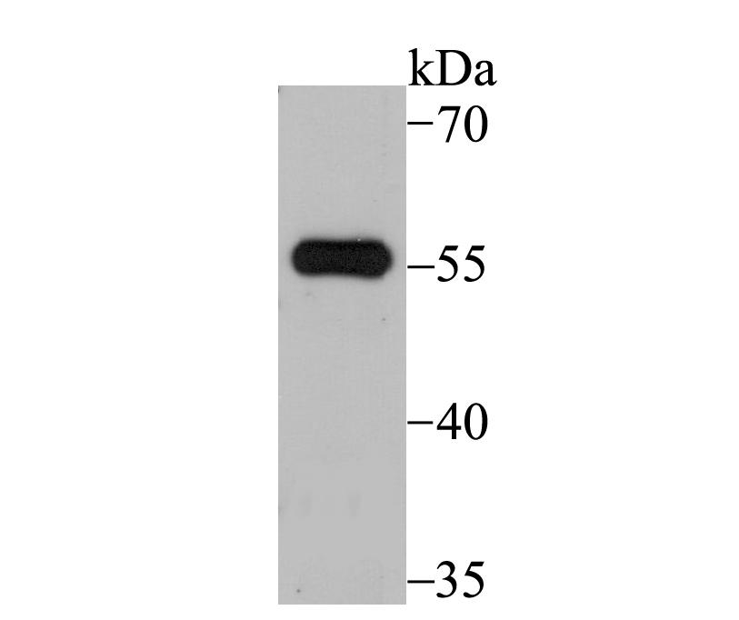 Western blot analysis of SUFU on 293 cell lysate using anti-SUFU antibody at 1/500 dilution.