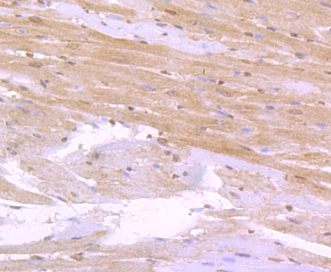 Immunohistochemical analysis of paraffin-embedded rat heart tissue using anti-CD36 antibody. Counter stained with hematoxylin.