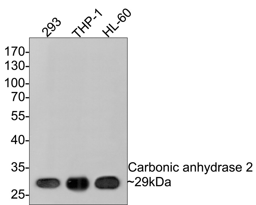 Western blot analysis of Carbonic anhydrase 2 on different cell lysates using anti-Carbonic anhydrase 2 antibody at 1/1,000 dilution.<br />  Positive control:<br />  Lane 1: 293 <br />          Lane 2: THP-1<br />  Lane 3: HL-60