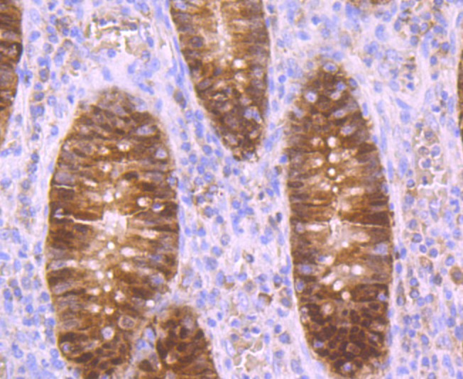 Immunohistochemical analysis of paraffin-embedded human appendix tissue using anti-Carbonic anhydrase 2 antibody. Counter stained with hematoxylin.